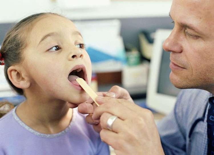 увеличенные гланды у детей